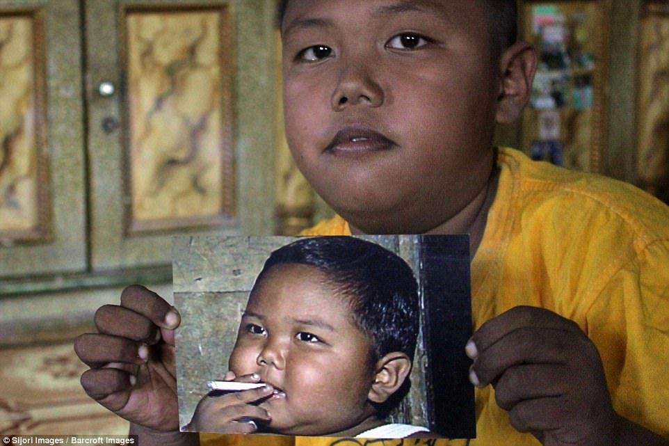 В 2 года по 40 сигарет. Самый юный курильщик в мире поразил изменениями во внешности